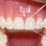 3 reinigung-mit-zahnseide