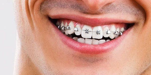 Feste Zahnspangen für Erwachsene - Dörfer Kieferorthopädie