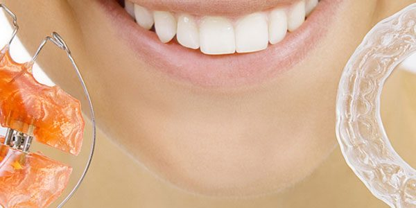 Herausnehmbare Zahnspangen für Erwachsene - Dörfer KFO
