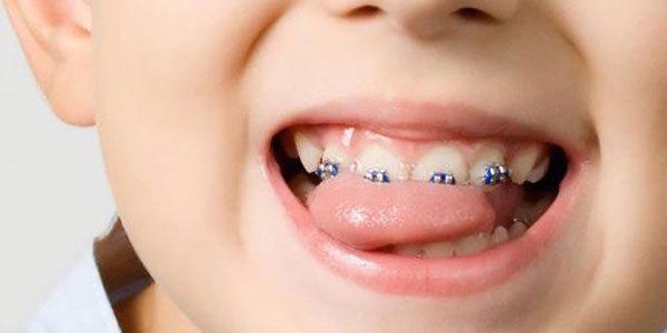Feste Zahnspangen für Kinder - Dörfer Kieferorthopädie