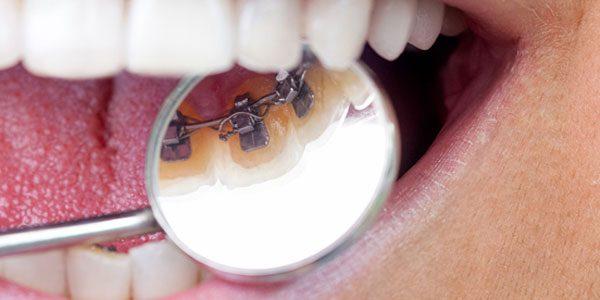 Unsichtbare Zahnspangen für Erwachsene