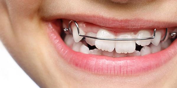 Durchsichtige zahnspange kosten