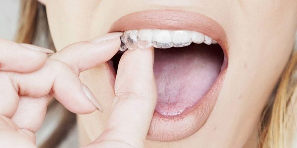 Invisalign Kosten - Herausnehmbare unsichtbare Zahnspange - Invisalign