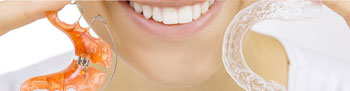 Herausnehmbare Zahnspangen für Erwachsene