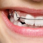 Herausnehmbare Zahnspangen für Kinder - Kieferorthopäde Dr Dörfer