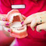 Invisalign Erfahrungen - durchsichtige Zahnschiene für Kinder und Erwachsene